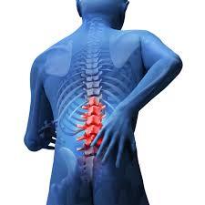 腰椎椎間板ヘルニア2