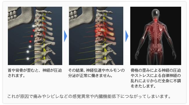 痛みの原因2